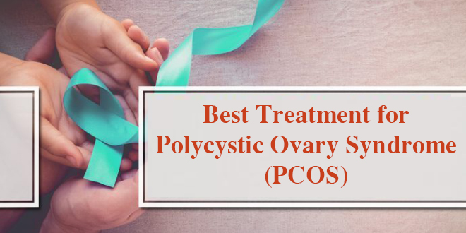 Best Treatment for Polycystic Ovary Syndrome (PCOS)